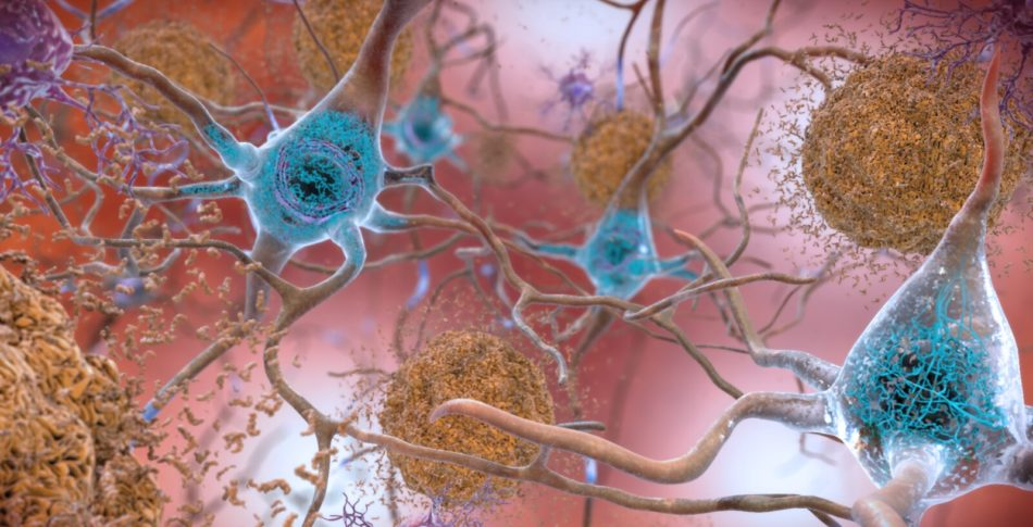 Löpning mot Alzheimers