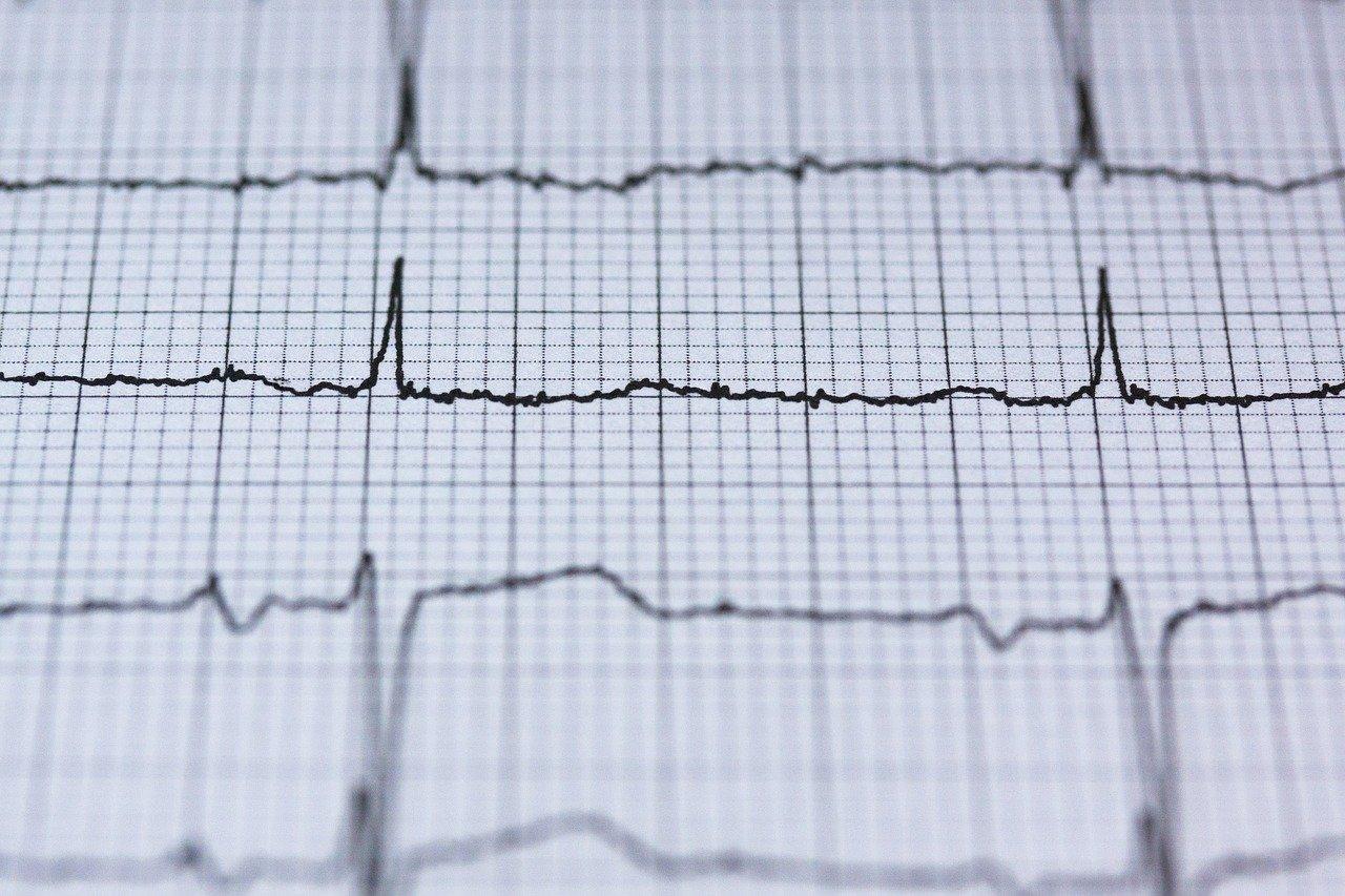hjärtfrekvensvariabilitet