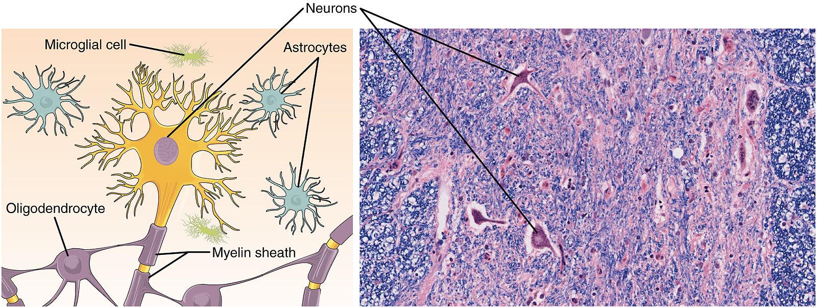 hjärnsubstans